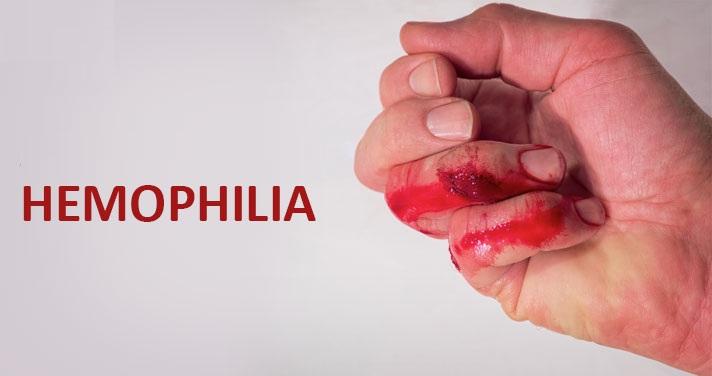 10 способов профилактики гемофилии, которые легко сделать