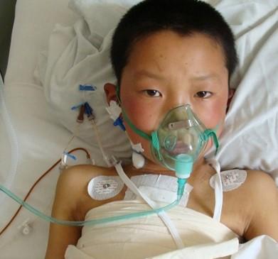 Факты о болезни Кавасаки, которая ставит под угрозу детское сердце