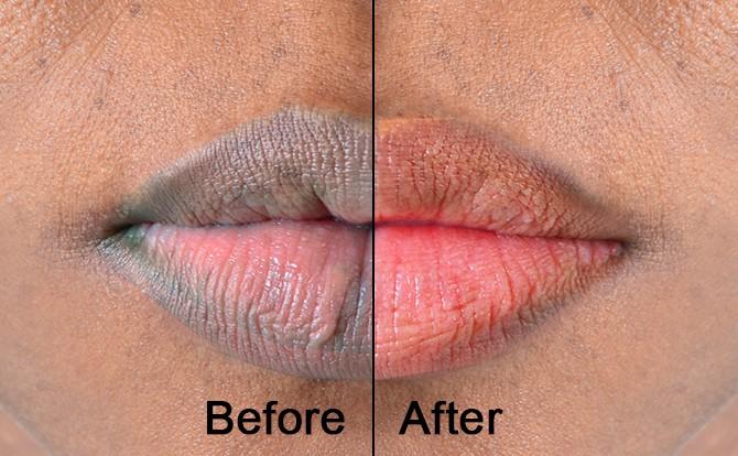 11 советов, как сделать губы светлее естественно за 3 недели