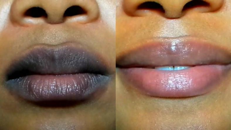 Причины темной пигментации на губах и как от нее избавиться