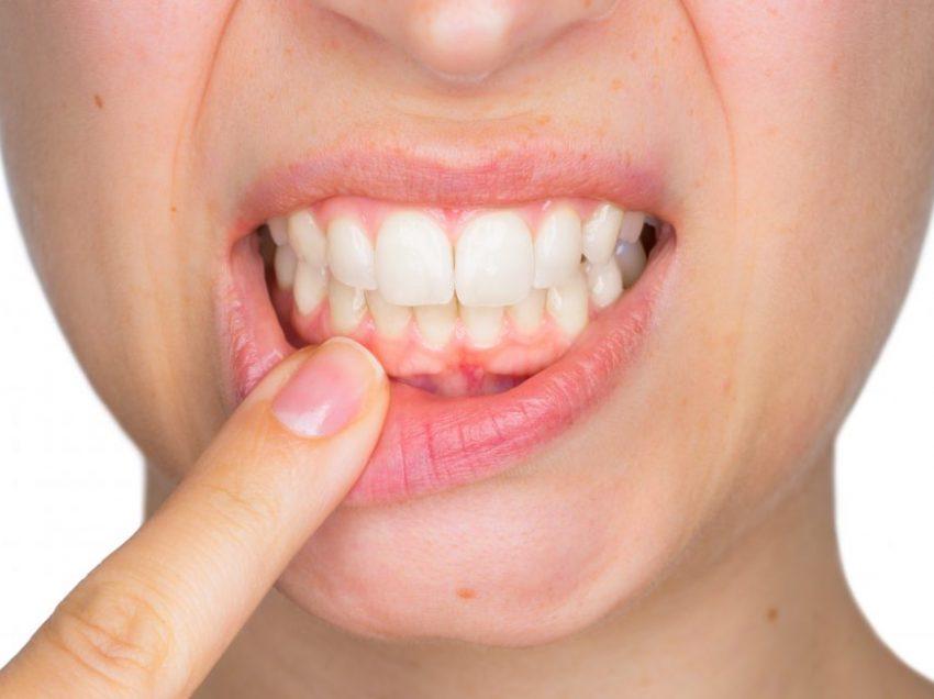 Правда ли, что стоматологические инфекции вызывают менингит и сердечные заболевания?