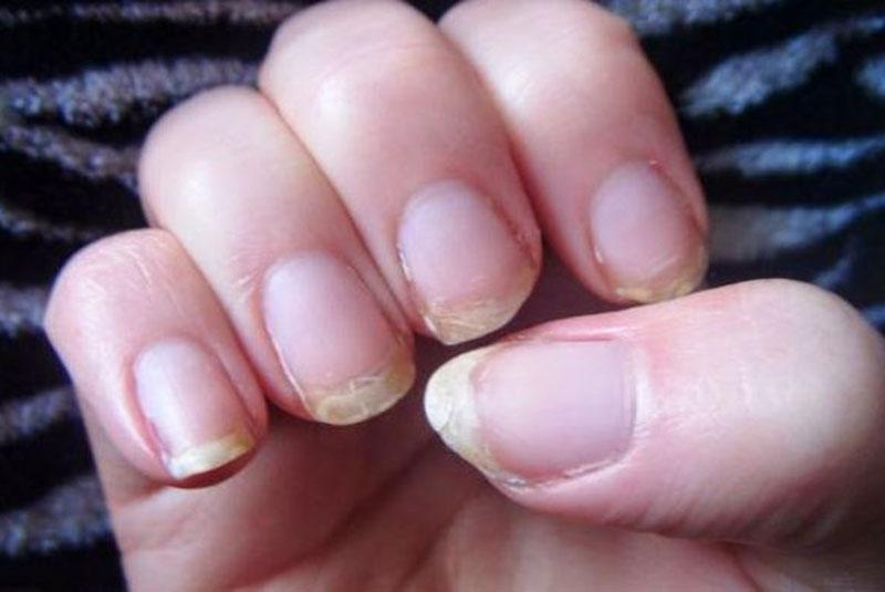 Узнайте о своих проблемах со здоровьем, глядя на свои ногти