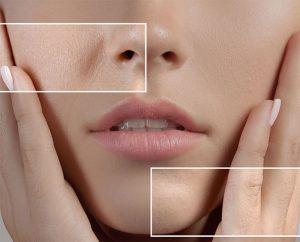minimize large pores