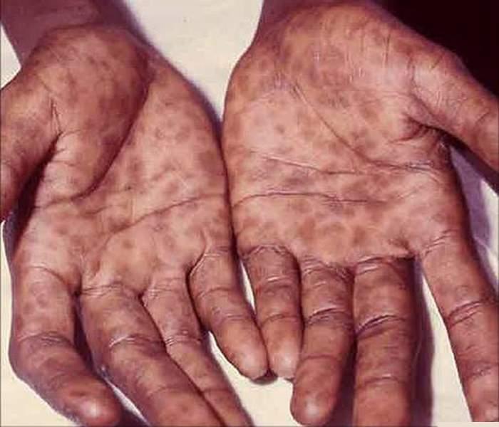 Осторожно! Вот основные 5 причин сифилиса и способы его предотвращения